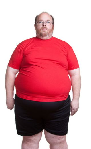 Obese man at 400lbs - front