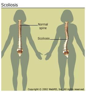 arthritis-scoliosis_scoliosisspine
