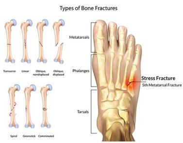 Foot-Fracture-Doctor-NYC