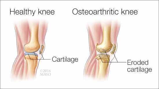 a-medical-illustration-of-two-knee-joints-one-healthy-the-other-with-osteoarthritis-and-erroded-cartilage-16X9