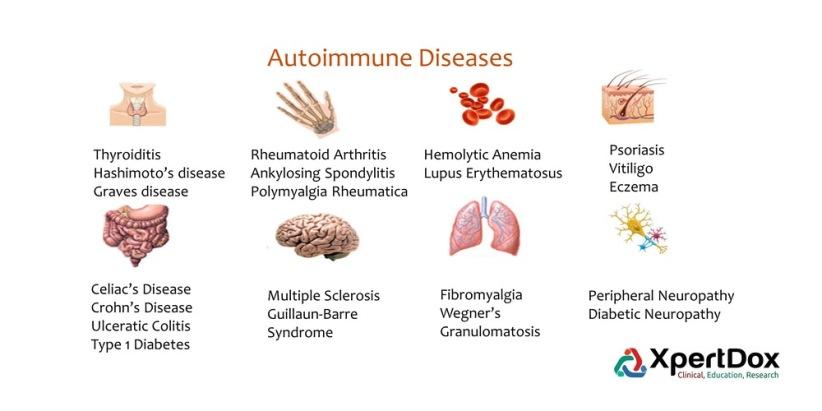 Autoimmune_diseases-1516772139346
